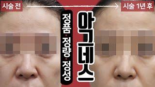 아그네스 시술 영상 톡스앤필 강남본점 교대역 피부과, …
