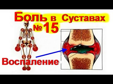 Что делать, если болят суставы ног