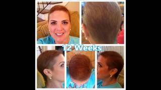 Hair Regrowth After Chemo