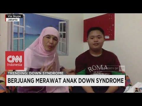 Berjuang Merawat Anak Down Syndrome