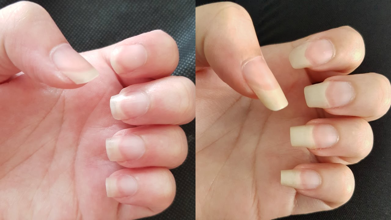 HOW TO GROW YOUR NAILS FAST IN A WEEK - YouTube