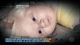 Saiba como vive o bebê albino que ficou famoso no Brasil