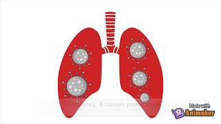 Fight COVID-19 pneumonia for better breathing with secretion management techniques