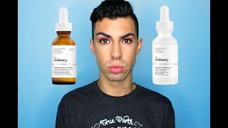 HOW I GOT RID OF MY EYE BAGS - The Ordinary Caffeine + Argireline