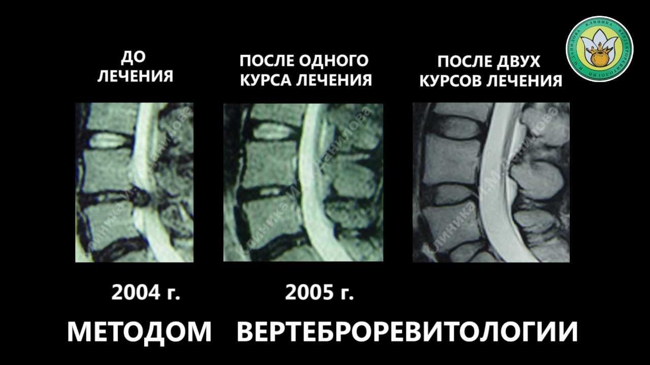 Боль в голове при остеохондрозе лечение