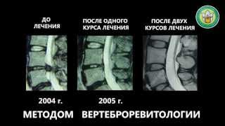 Регенерация межпозвонковых дисков. Клиника И. М. Данилова