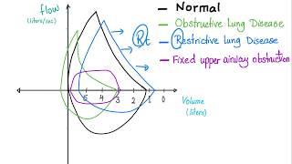 Flow Volume Loops   Pulmonary Medicine