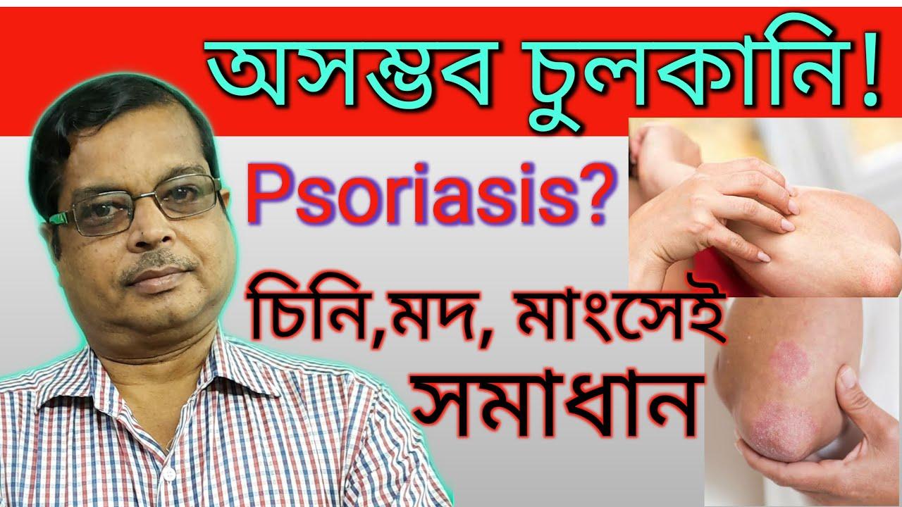 psoriasis translation bangla