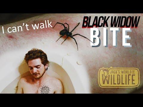BLACK WIDOW BITE!! Try Not To DIE  | Texas Series |
