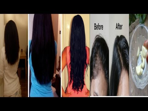 How To Make garlic Hair Oil At Home : For Hair Growth and Reduce Hair Fall
