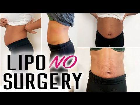 How To Lose Belly Fat FAST - Skinny Girl Lipo Cavitation Experience