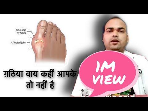 Gout(high Uric Acid) - Diagnosis, Causes, Introduction Of Gout, Pathology, Diet Dos
