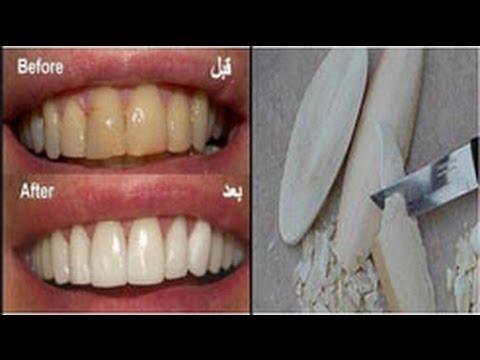 تبييض الأسنان والتخلص من الإصفرار ضعيها لأسنانك دقيقة واحدة فقط والنتيجة مبهرة قسما بالله مجربة Youtube