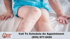 Fort Collins Bed Bug Removal | Fort Collins Bed Bug Exterminator | Bed Bug Pest Control