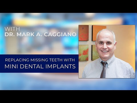 Replacing Missing Teeth with Mini-Dental Implants with Seattle dentist Mark A. Caggiano, DDS