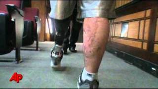 Walter Reed Doctor: First-Ever Powered Prothesis