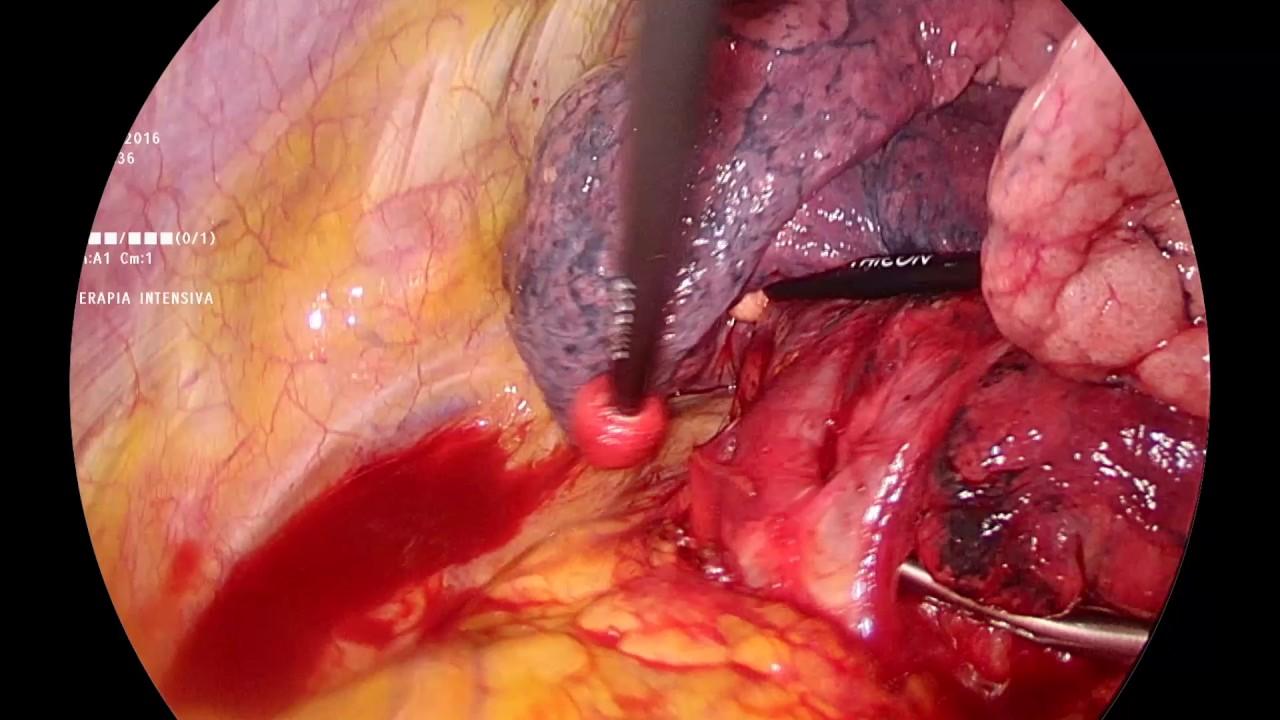 Alessia Stanzi, Federico Mazza, Giulio Melloni - VATS Left Apical trisegmentectomy