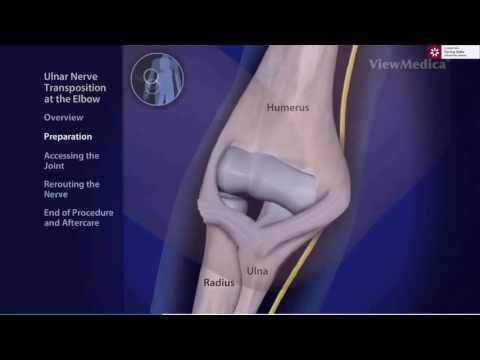 tratamentul epicondilitei articulației cotului cu unguente