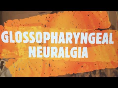 Facial nerve pain // Glossopharyngeal neuralgia // Trigeminal Neuralgia // Occipital Neuralgia.