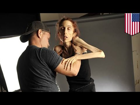 Anorexic actress Rachael Farrokh raises $178,000 online for treatment - TomoNews