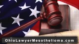 Ohio Mesothelioma Lawyer | Ohio Mesothelioma Attorney - Asbestos Lawyer  OH