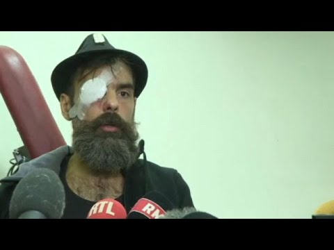 euronews (in English): Yellow vest protester blames police after suffering serious eye injury