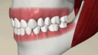 видео Какие коронки лучше ставить на жевательные зубы