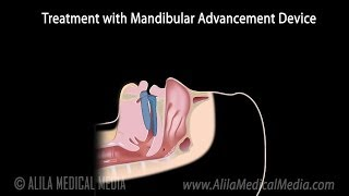 Snoring, Obstructive Sleep Apnea and Treatment, Animation.