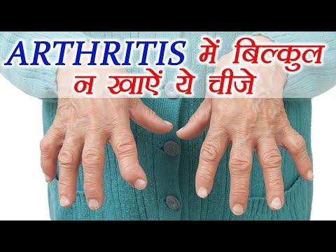 Arthritis Diet: Foods to AVOID   आर्थराइटिस में बिलकुल न खाऐं ये चीज़ें   Boldsky