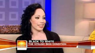 Girl with vitiligo talks about Michael Jackson