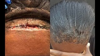 MUST WATCH!! SCALP FOLLOWED LACE WIG -  DESTRUCTIVE HAIRSTYLES