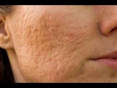 De los trozos el lux del acné