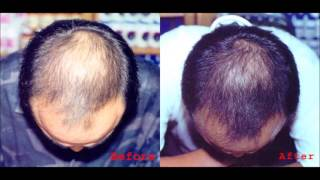 Can We Regrow Lost Hair - How To Use Emu Oil For Hair Loss