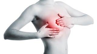 Cancer du sein: quelles sont les statistiques ?