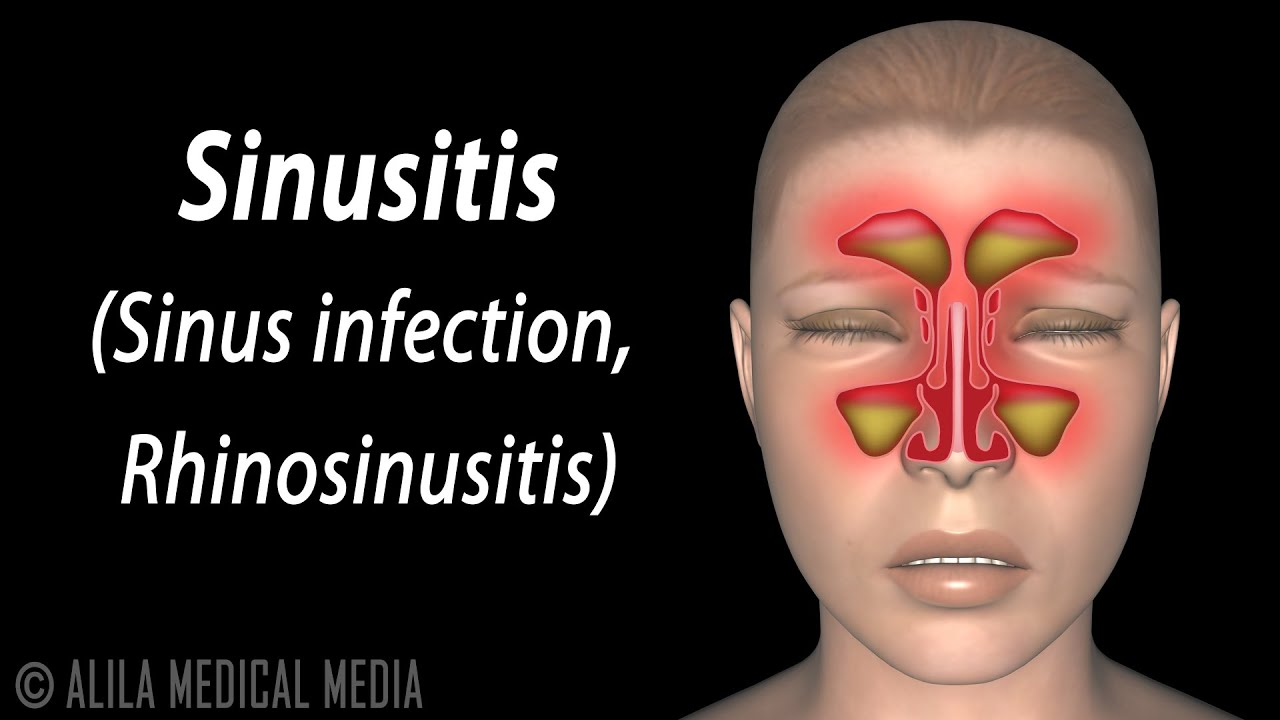 Sinusitis Animation Youtube