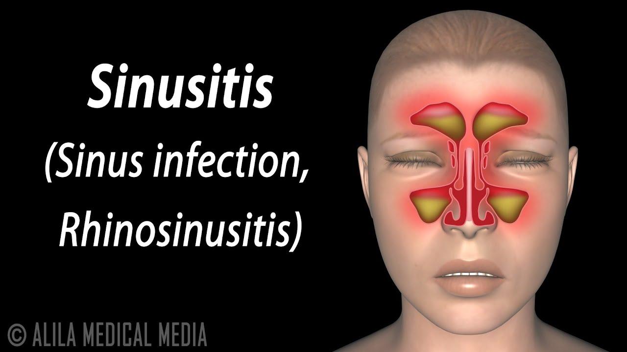 hight resolution of sinusitis animation