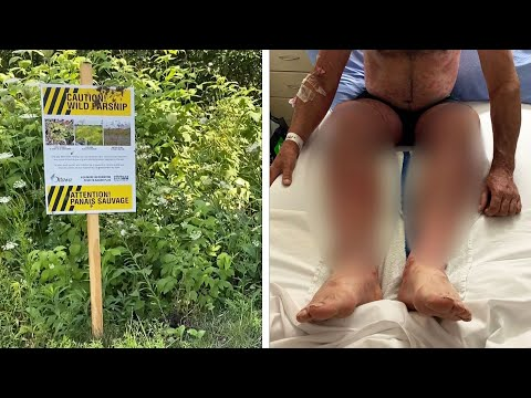 """""""You don't want this"""": Wild parsnip lands Ont. man in hospital with severe burns"""