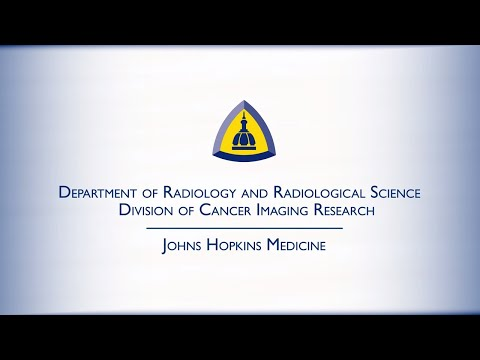 Cancer Imaging Research | Johns Hopkins Radiology