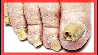 Remedios caseros para hongos en las uñas de los pies y manos con efectividad comprobada