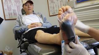 Wound VAC dressing change of a diabetic foot ulcer