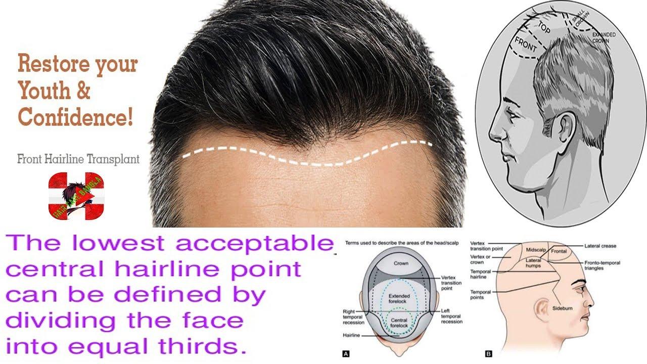 hairline design in hair transplant