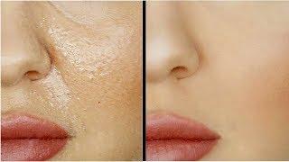 Правильный уход за сухой и проблемной кожей лица: видео, методики домашнего ухода