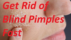 hqdefault - Natural Cure Blind Pimple