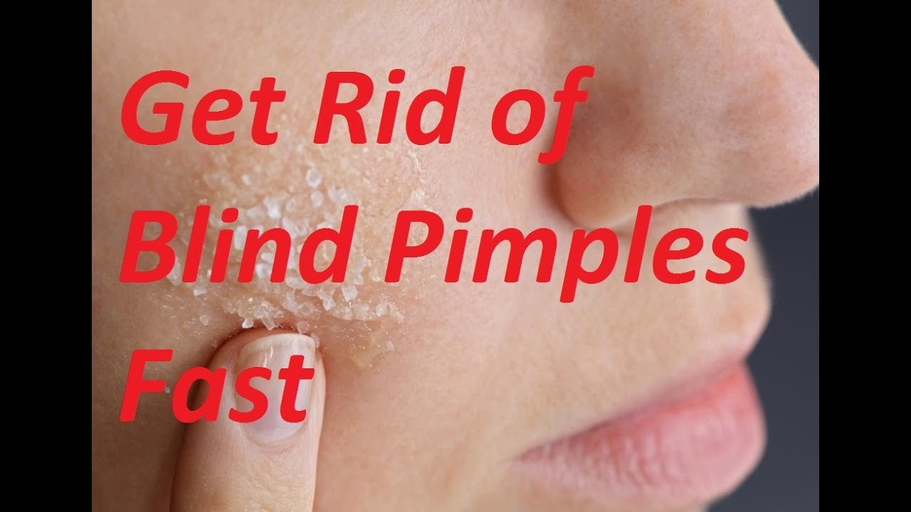 Quick Answer How Do You Get Rid Of A Blind Pimple Fast Golf