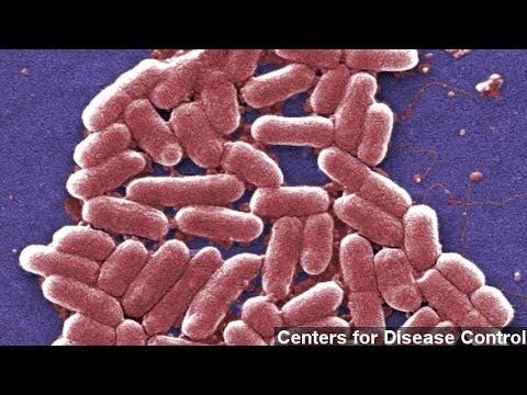 E. Coli 'Superbug' May Be Severe Health Problem: Study