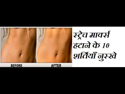 Top 10 Home remedies for Strech Marks / Stretch Marks Kaise Hataye / Stretch Marks Removal at Home
