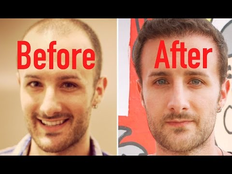 FUT vs. FUE - Hair Transplant FACTS ...You Probably Didn't Know