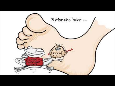 Children's Plantar Warts Treatment   Pediatric Foot & Ankle