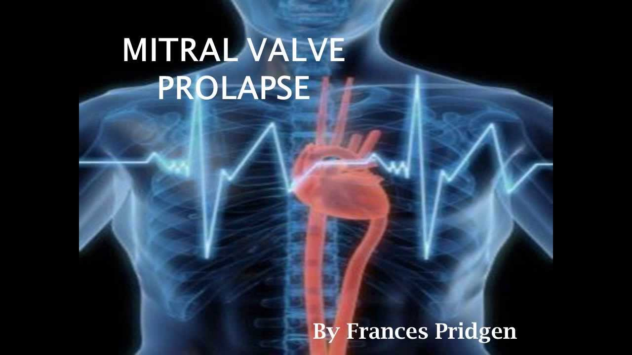 mitral valve prolapse - YouTube