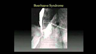 #mucocele and treatment,#salivary gland swelling,#sjeogren's  syndrome treatment,.